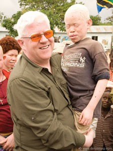 Founder of Under the Same Sun Peter Ash with Albino child.